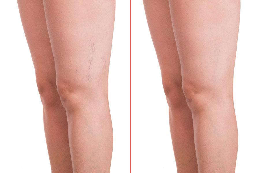 Capillari sulle gambe: prima e dopo il trattamento laser