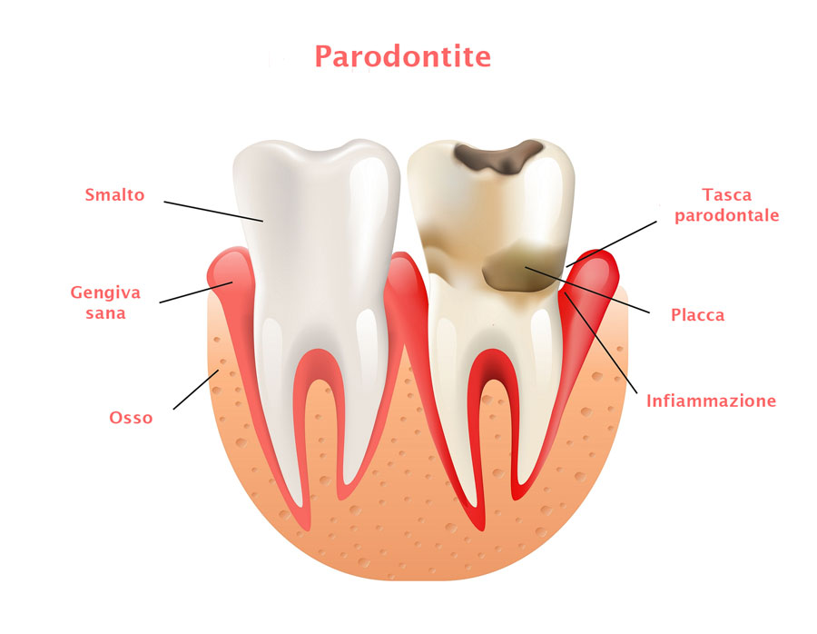 malattia parodontale, chirurgia ossea