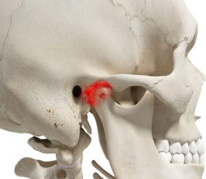 gnatologia articolazione temporo mandibolare atm