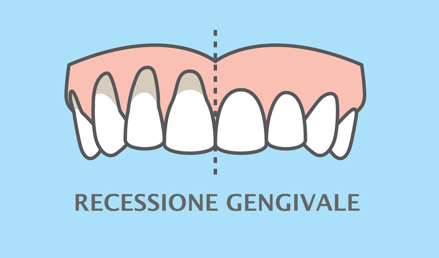 rigenerazione ossea recessione gengivale