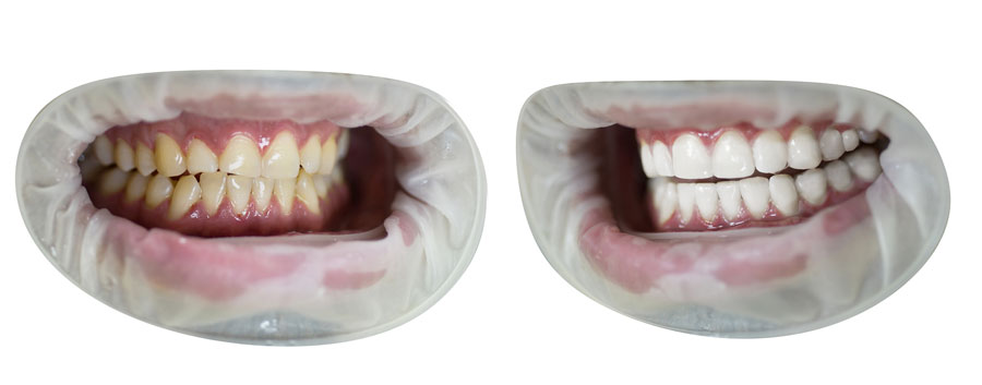 denti macchiati sbiancamento