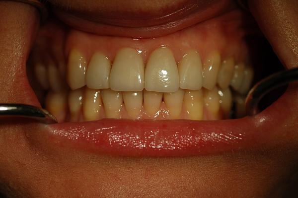 faccette dentali dopo