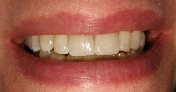 faccette dentali estetiche in ceramica