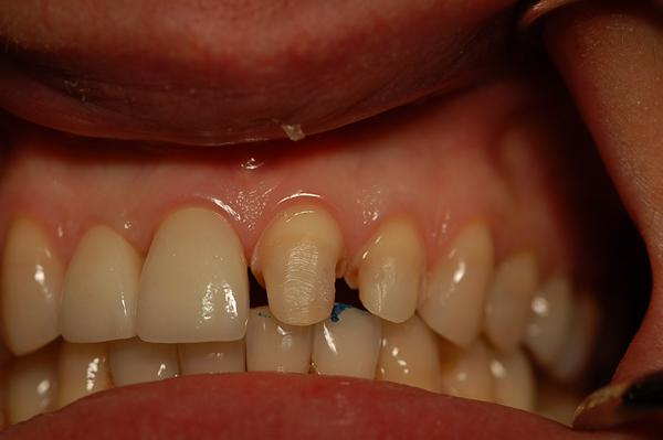 faccette dentali limatura dente