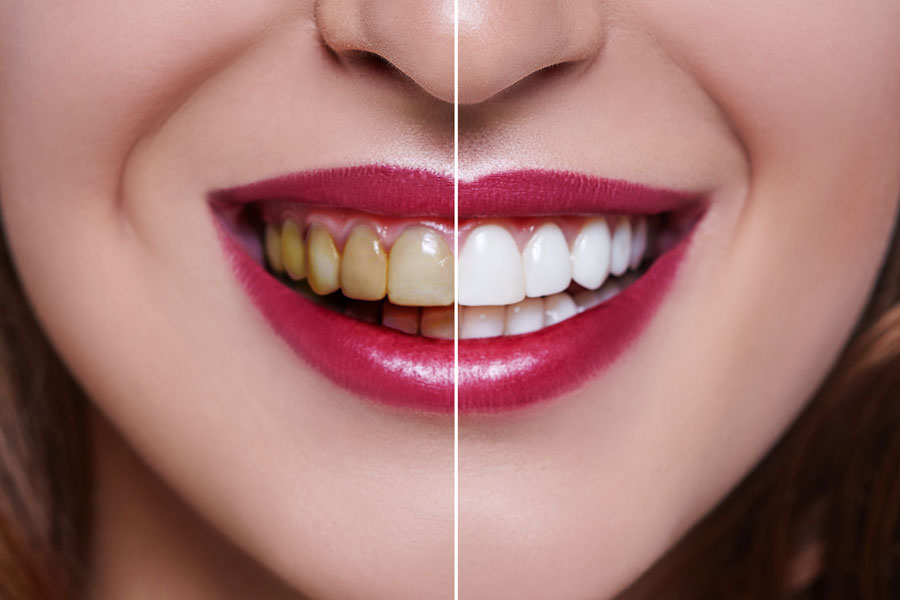 Macchie sui denti come toglierle. Prima e dopo.