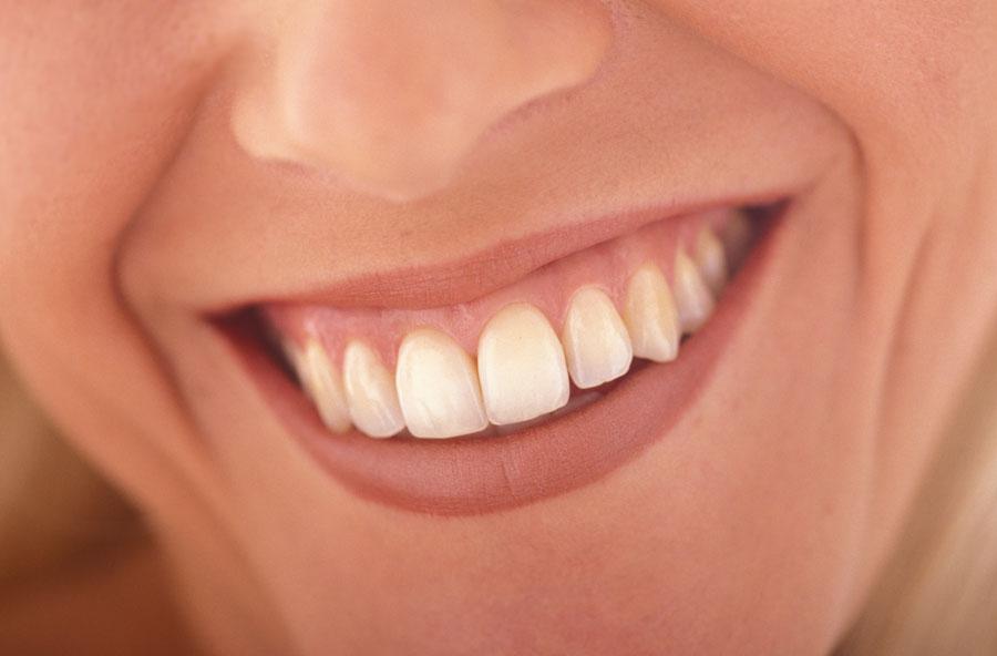 sorriso con gengive labbra sottili