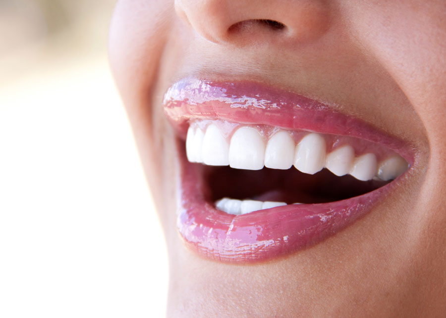 sorriso perfetto con labbra definite