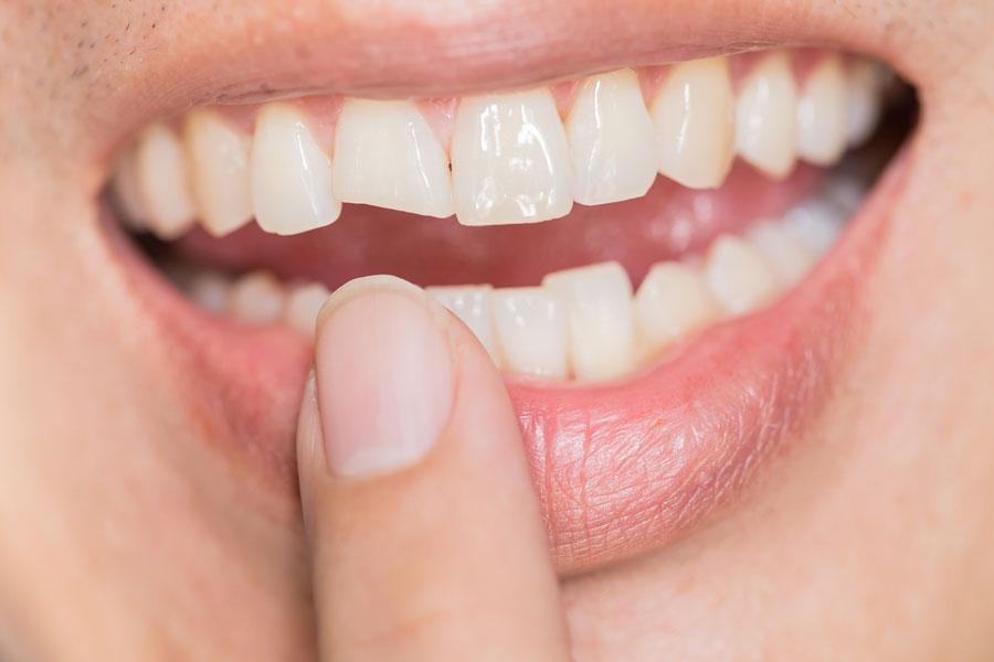 dente spezzato faccetta