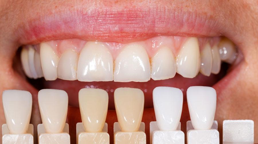 sbiancamento dentale professionale con scala cromatica