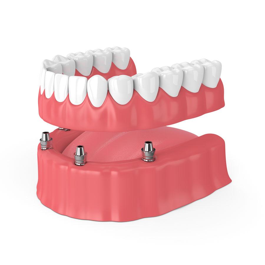 all on four costo impianti dentali