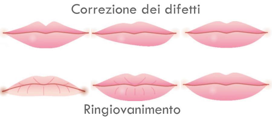 filler labbra correggere difetti