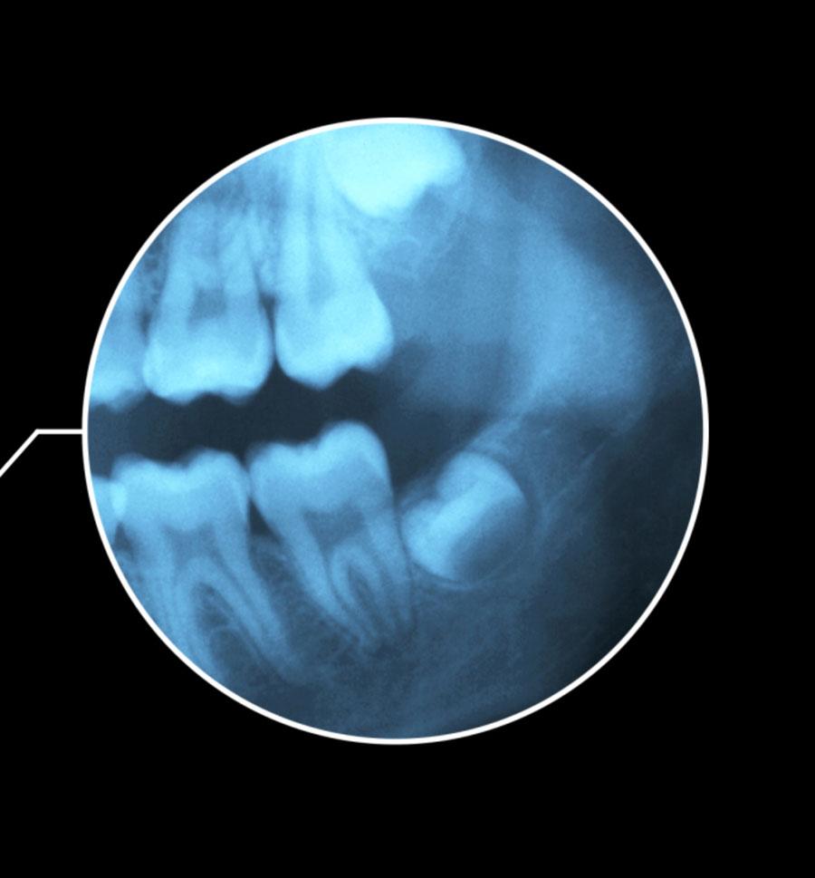 denti del giudizio germectomia