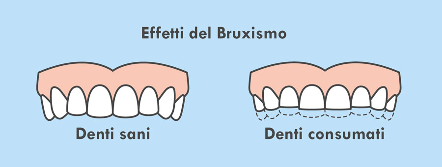 erosione dentale bruxismo