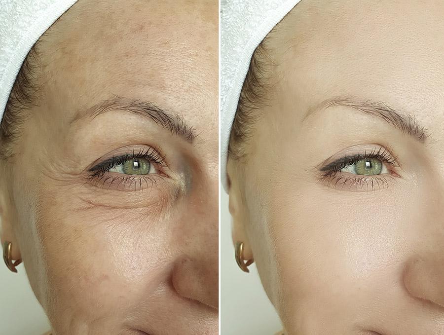 CPA lifting viso senza bisturi
