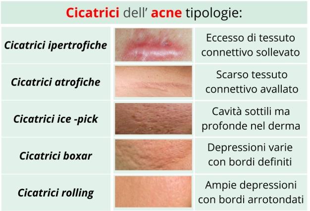 4 rimedi naturali per eliminare le cicatrici dell'acne ...